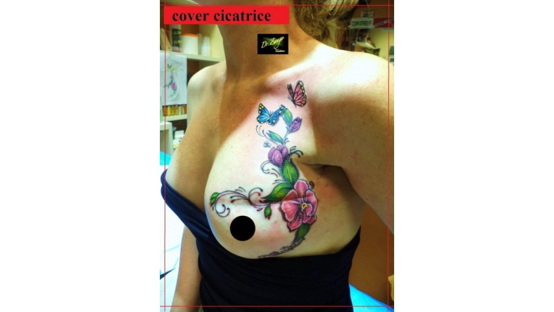 Copertura cicatrici con tatuaggio eseguita da dr. Zivago Tattoo